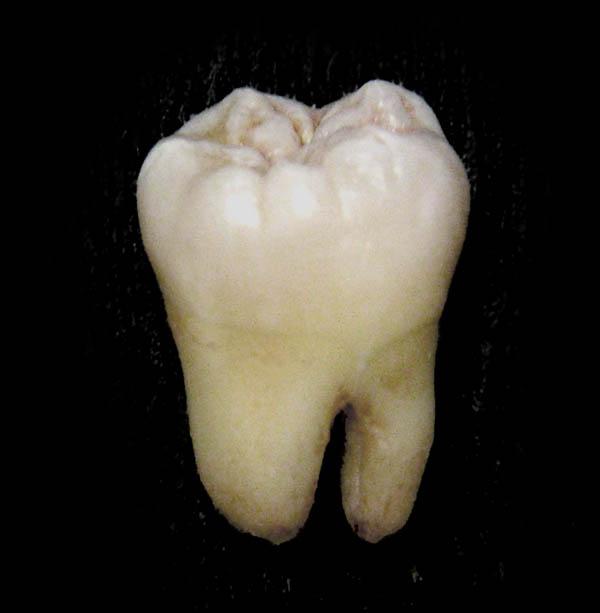 Lower_wisdom_tooth.jpg